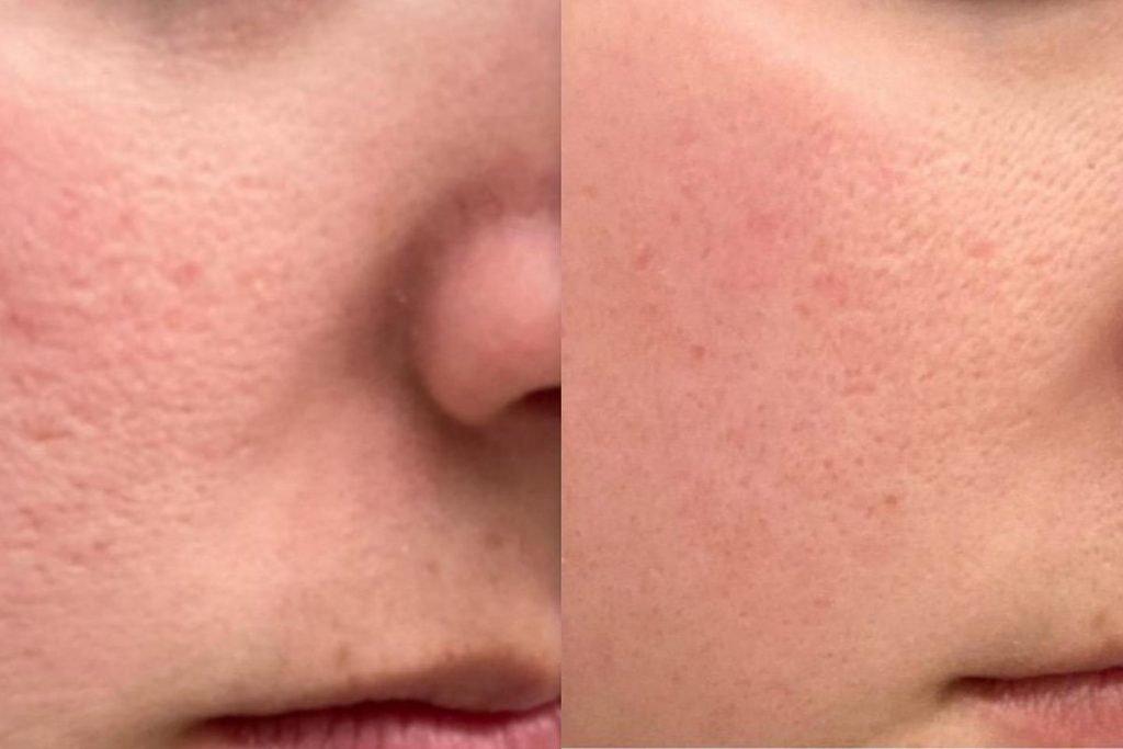 Dermaroller ile yüz bakımı