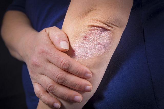 Egzama Tedavisinde Kuru Cilt / Yumuşatıcı Krem ve İlaçlar