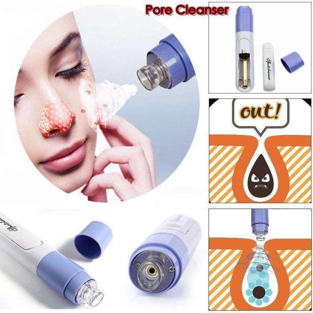 Pore Cleaner Vakumlu Yüz Temizleme Cihazı