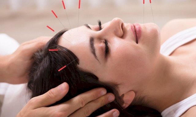Akupunktur Tedavisi Nasıl Yapılır