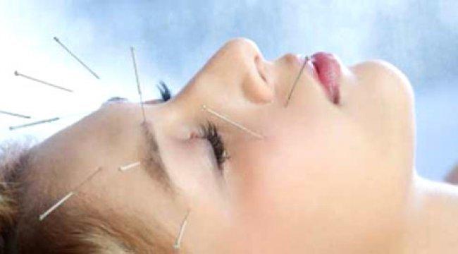 Akupunktur Tedavisinin Faydaları