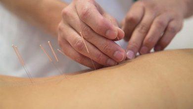 Akupunktur ile Obezite Tedavisi