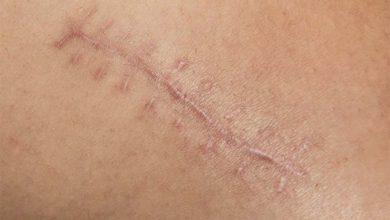 Kriyoterapi ile Keloid Tedavisi Nasıl Yapılır