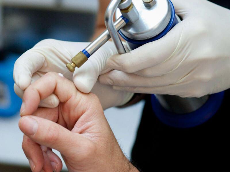 Kriyoterapi ile Siğil Tedavisi Nasıl Olur?