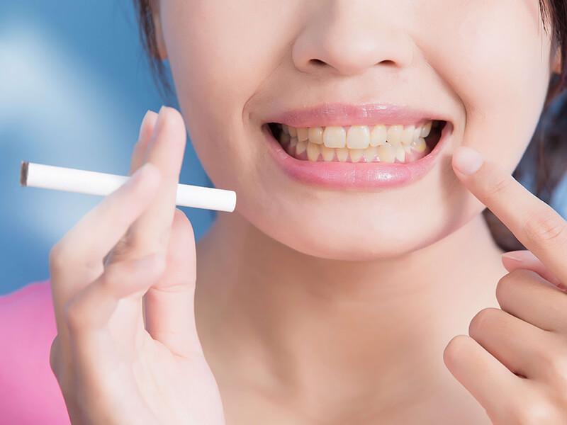 Sarı Diş Lekesi Nasıl Çıkar?