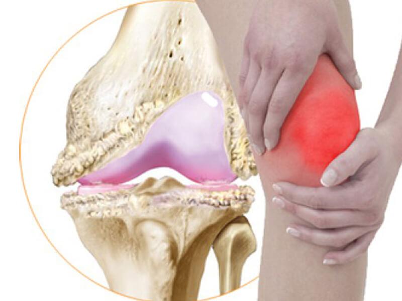 Osteoartrit (eklem kireçlenmesi)