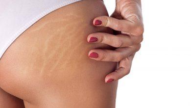 Bacak Çatlakları İçin Bitkisel Tedavi Yöntemleri