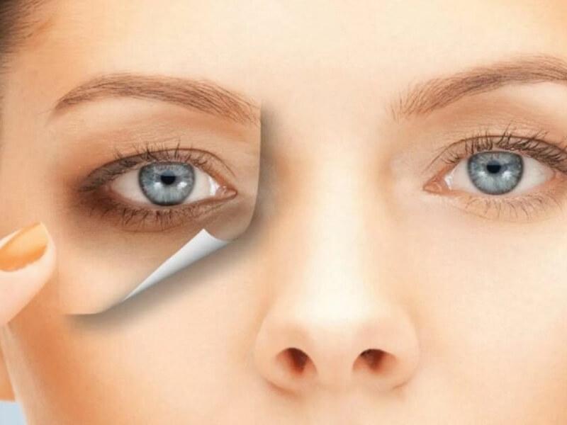 Göz altı morlukları için ev yapımı maske hilesi