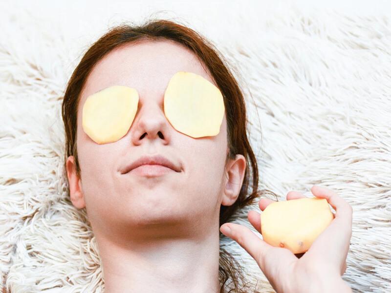 İspanya: Gözlerinizin altındaki koyu halkalardan kurtulmak için patates dilimleri uygulayın