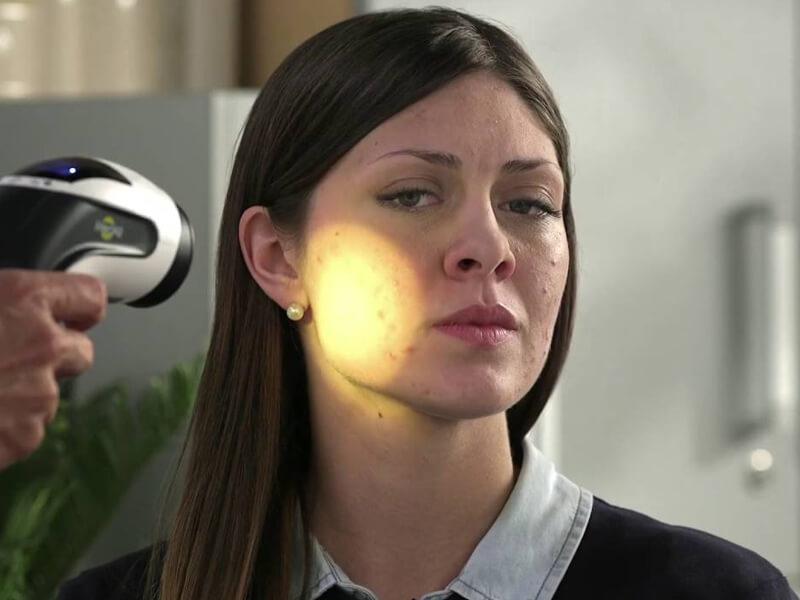 Evde Sivilceler İçin Işık Terapisi Mucizeler Yaratmaz